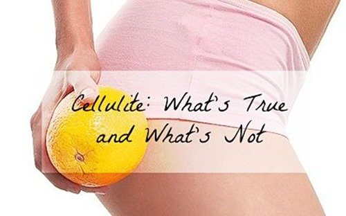 Cellulite:What's True and What's Not